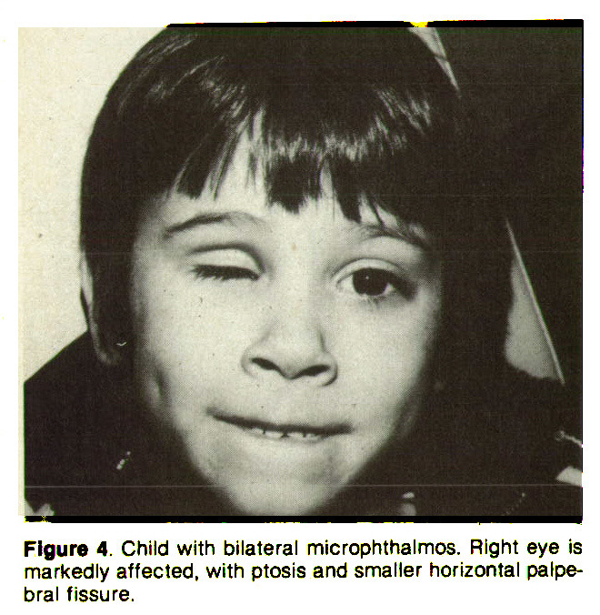 Figure 4. Child with bilateral microphthalmos. Right eye is markedly affected, with ptosis and smaller horizontal palpebral fissure.