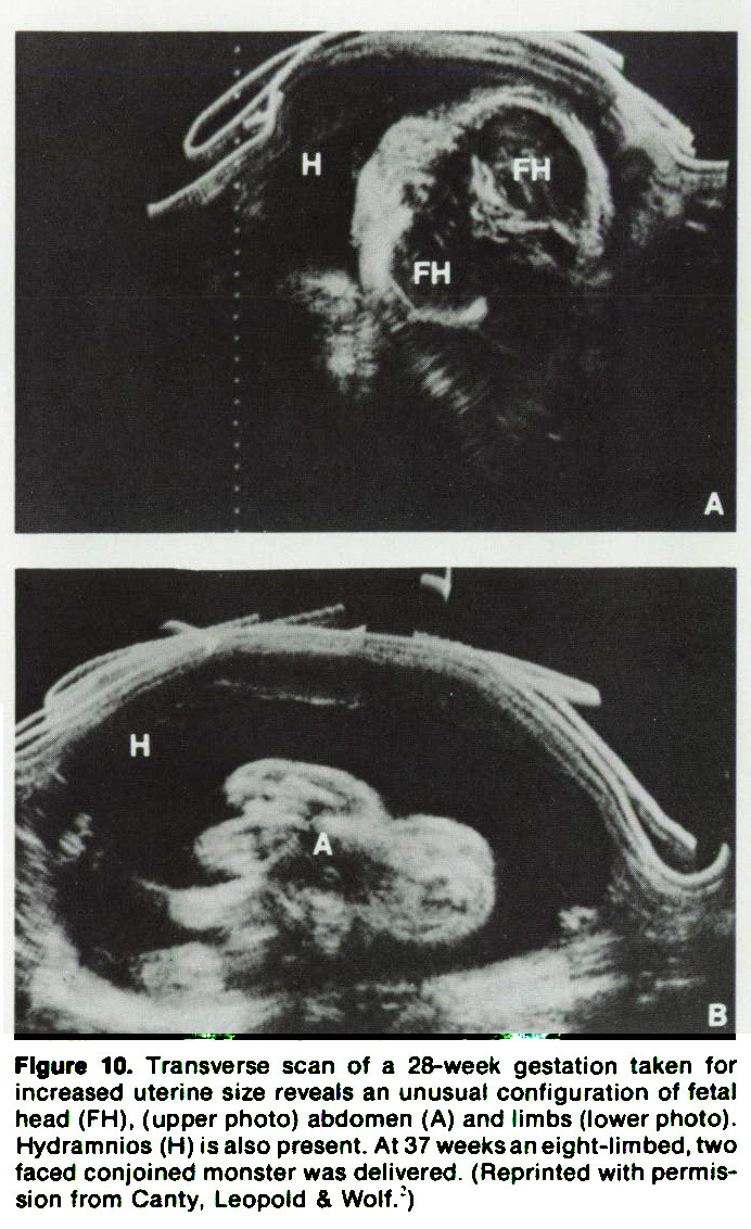 Figure 10. Transverse scan of a 28-week gestation taken for increased uterine size reveals an unusual configuration of fetal head (FH), (upper photo) abdomen (A) and timbs (lower photo). Hydramnios (H) is also present. At 37 weeks an eight-limbed, two faced conjoined monster was delivered. (Reprinted with permission from Canty, Leopold & Wolf/)