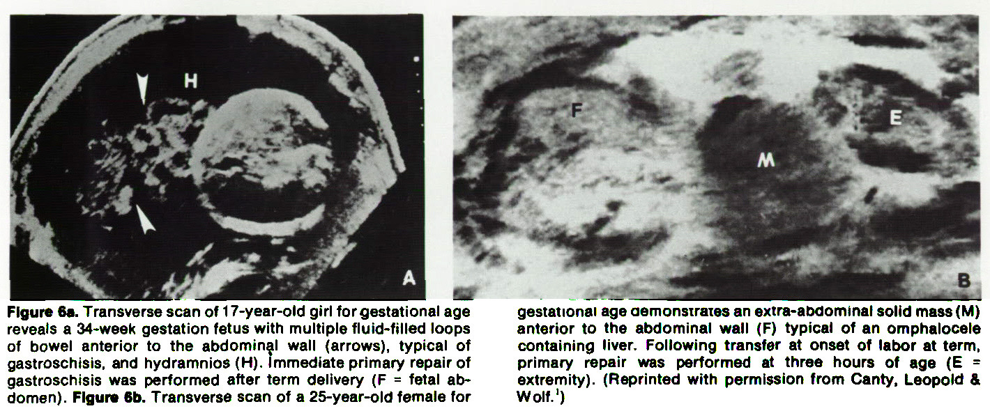 Figure 6a. Transverse scan of 1 7-year-old girl for gestational age reveals a 34-week gestation fetus with multiple fluid-filled loops of bowel anterior to the abdominal wall (arrows), typical of gastroschisis, and hydramnios (H). Immediate primary repair of gastroschisis was performed after term delivery (F = fetal abdomen). Figura 6b. Transverse scan of a 25-year-old female for gestational age aemonsiraies an extra-abdominal solid mass (M) anterior to the abdominal wall (F) typical of an omphalocele containing liver. Following transfer at onset of labor at term, primary repair was performed at three hours of age (E = extremity). (Reprinted with permission from Canty, Leopold & Wolf.1)