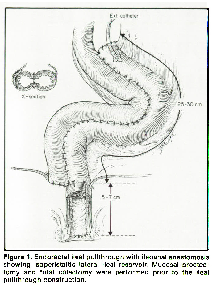 Figure 1. Endorectal ileal pullthrough with ileoanal anastomosis showing isoperistaltic lateral ileal reservoir. Mucosal proctectomy and total colectomy were performed prior to the ileal pullthrough construction.