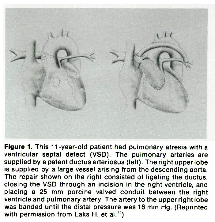 Figure 1. This 11-year-old patient had pulmonary atresia with a ventricular septal defect (VSD). The pulmonary arteries are supplied by a patent ductus arteriosas (left). The right upper lobe is supplied by a large vessel arising from the descending aorta. The repair shown on the right consisted of !igating the ductus, closing the VSD through an incision in the right ventricle, and placing a 25 mm porcine valved conduit between the right ventricle and pulmonary artery. The artery to the upper right iobe was banded until the distal pressure was 18 mm Hg. (Reprinted with permission from Laks H, et al.'5)