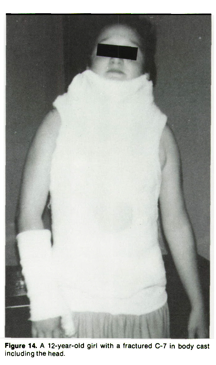 Figure 14. A 12-year-old girl with a fractured C-7 in body cast including the head.