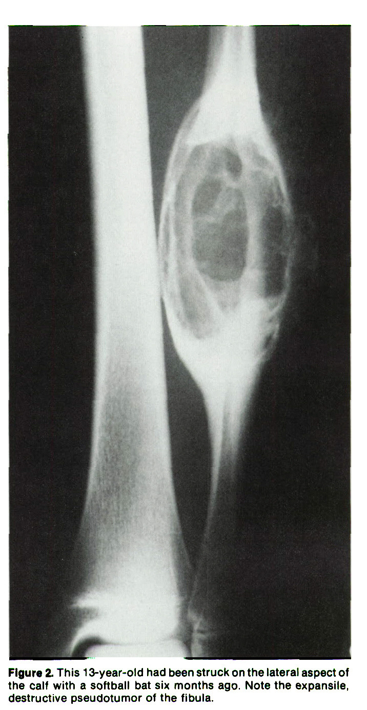 Figure 2. This 1 3-year-old had been struck on the lateral aspect of the calf with a softball bat six months ago, Note the expansile, destructive pseudotumor of the fibula.