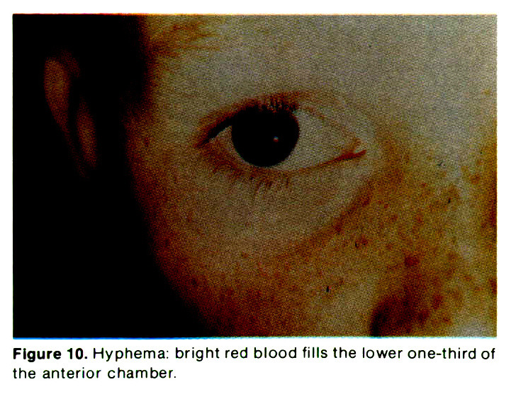 Figure 10. Hyphema: bright red blood fills the lower one-third of the anterior chamber.