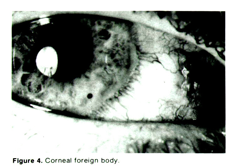 Figure 4. Corneal foreign body.