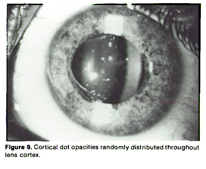 Figure 9. Cortical dot opacities randomly distributed throughout lens cortex.
