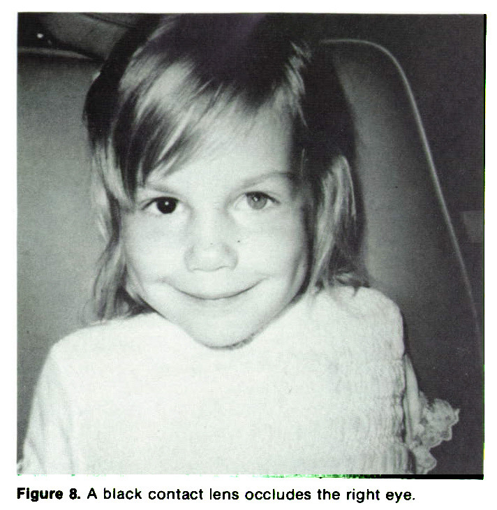 Figure 8. A black contact lens occludes the right eye.