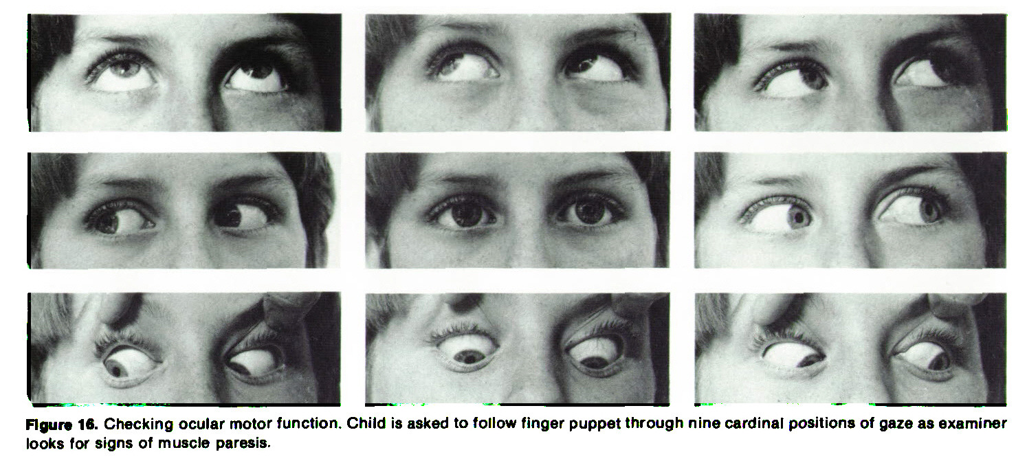 Figure 16. Checking ocular motor function. Child is asked to follow finger puppet through nine cardinal positions of gaze as examiner looks for signs of muscle paresis.