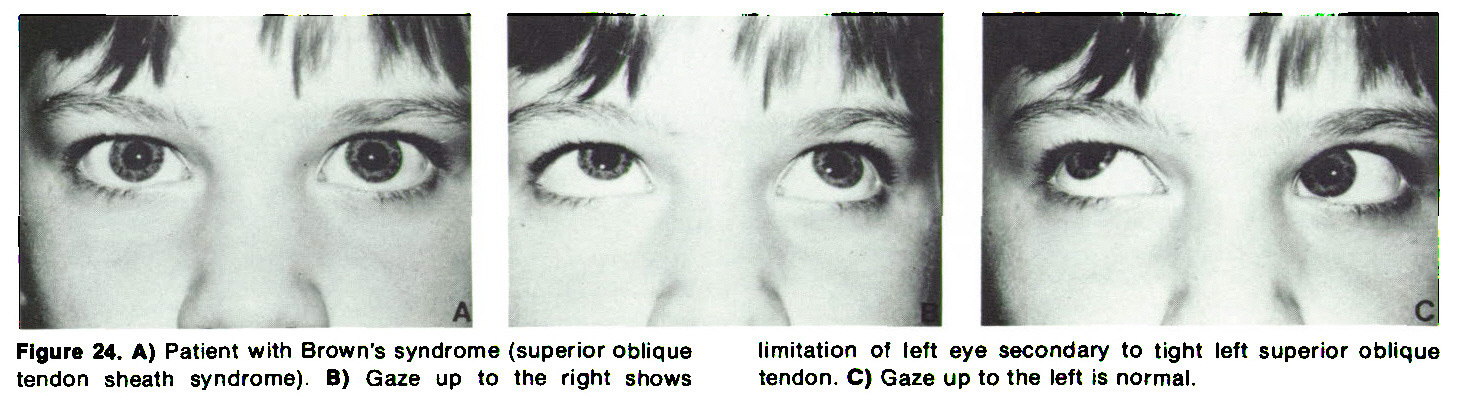 Figure 24. A) Patient with Brown's syndrome (superior oblique tendon sheath syndrome). B) Gaze up to the right shows limitation of left eye secondary to tight left superior oblique tendon. C) Gaze up to the left is normal.