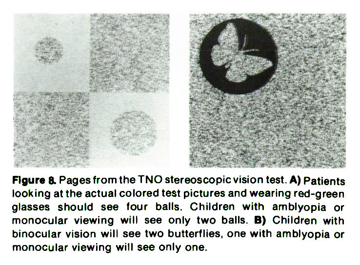 Figure 8. Pages from the TNO stereoscopic vision test. A) Patients looking at the actual colored test pictures and wearing red-green glasses should see four balls. Children with amblyopia or monocular viewing will see only two balls. B) Children with binocular vision will see two butterflies, one with amblyopia or monocular viewing will see only one.