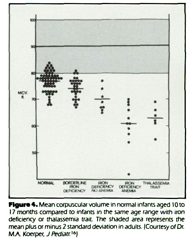 Figure 4. Mean corpuscular volume in normal infants aged 10 to 17 months compared to infants in the same age range with iron deficiency or thalassemia trait. The shaded area represents the mean plus or minus 2 standard deviation in adults. (Courtesy of Dr. M.A. Koerper. J Pediatr.16)