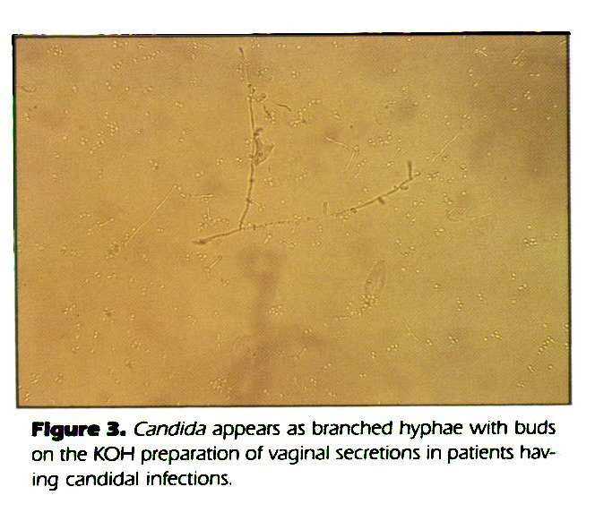 Figure 3. Candida appears as branched hyphae with buds on the KOH preparation of vaginal secretions in patients having candidai infections.