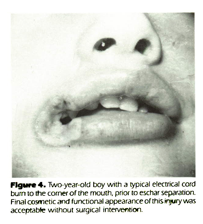 Figure 4. Two-year-old boy with a typical electrical cord burn to the corner of the mouth, prior to eschar separation. Final cosmetic and functional appearance of this injury was acceptable without surgical intervention.