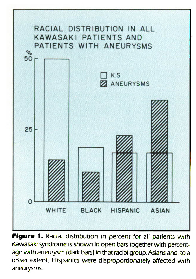 Figure 1. Racial distribution in percent for all patients with Kawasaki syndrome is shown in open bars together with percentage with aneurysm (dark bars) in that racial group. Asians and. to a lesser extent, Hispanics were disproportionately affected with aneurysms.