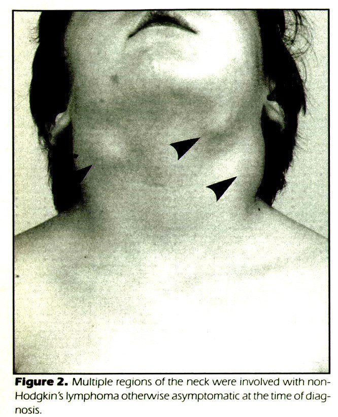 Figure 2. Multiple regions of the neck were involved with nonHodgkin's lymphoma otherwise asymptomatic at the time of diagnosis.