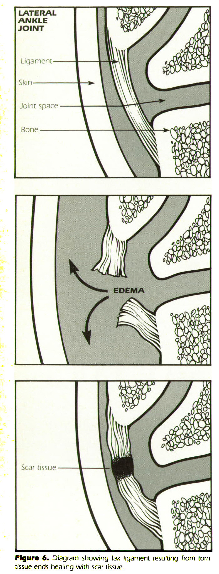 Figure 6. Diagram showing lax ligament resulting from torn tissue ends healing with scar tissue.