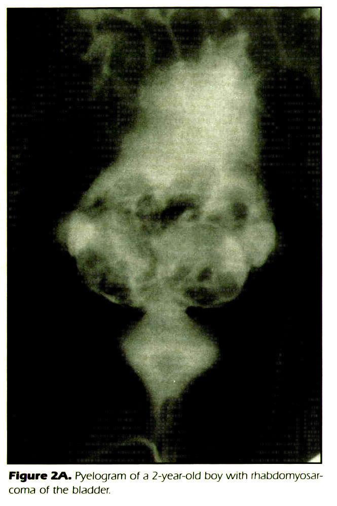 Figure 2A. Pyelogram of a 2-year-old boy with rhabdomyosarcoma of the bladder.