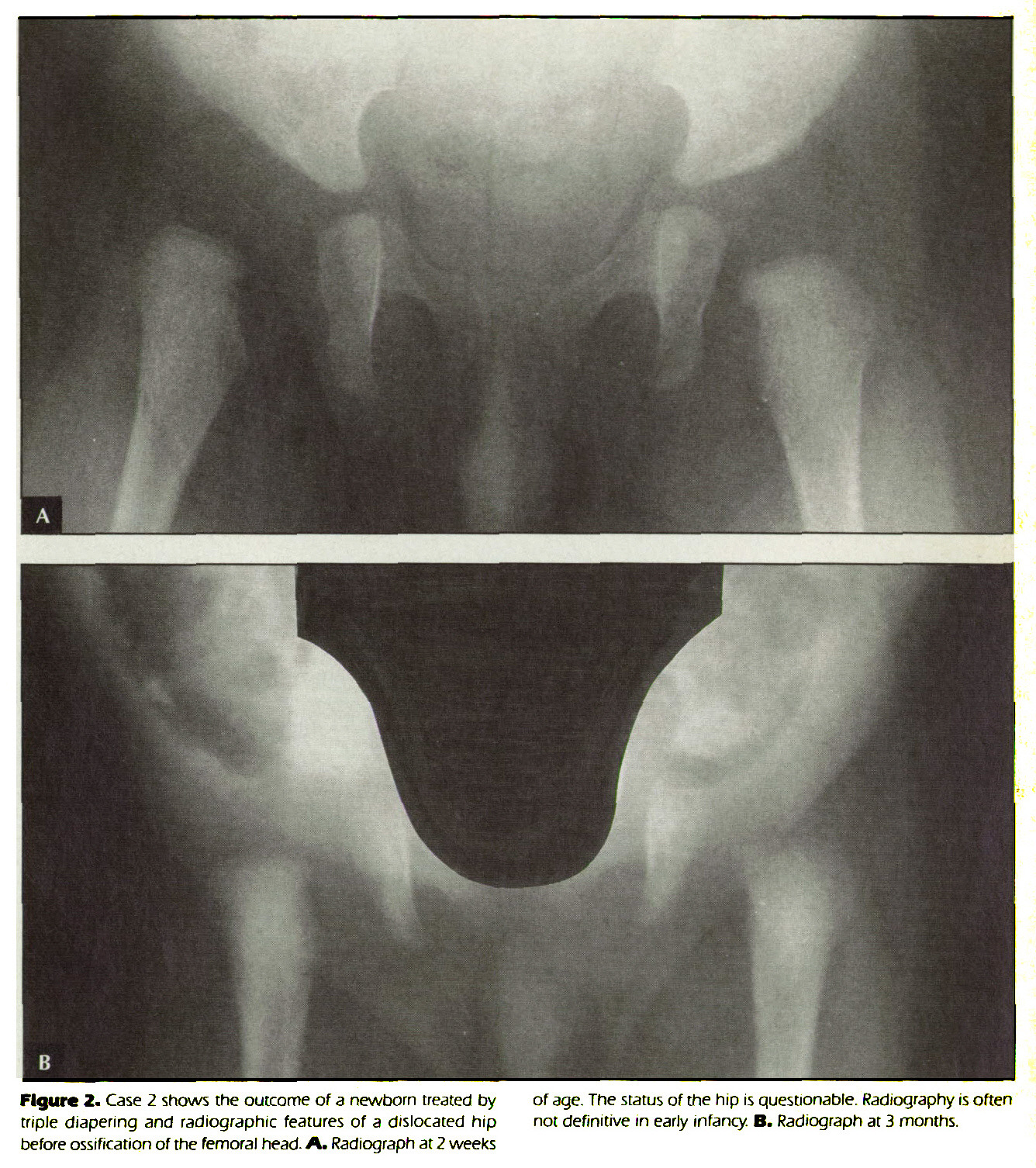 Figure 2. Case 2 shows the outcome of a newborn treated by triple diapering and radiographic features of a dislocated hip before ossification of the femoral head- A. Radiograph at 2 weeks of age. The status of the hip is questionable. Radiography is often not definitive in early infancy. B. Radiograph at 3 months.