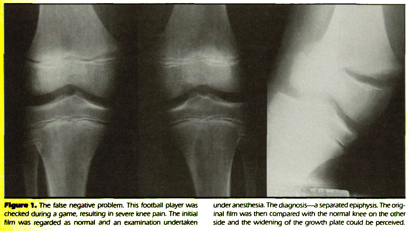 Figura 1. The false negative problem. This football player was checked during a game, resulting in severe knee pain. The initial film was regarded as normal and an examination undertaken under anesthesia. The diagnosis - a separated epiphysis. The original film was then compared with the normal knee on the other side and the widening of the growth plate could be perceived.
