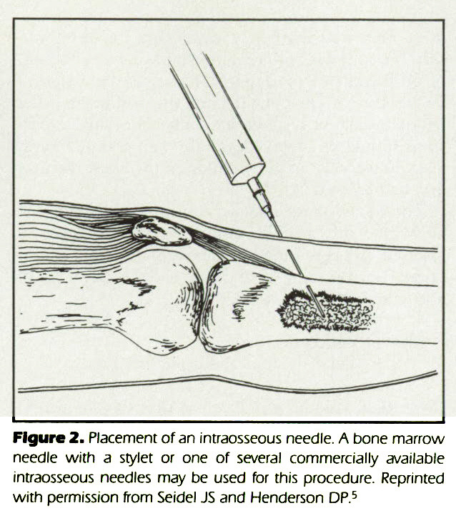 Figure 2. Placement of an intraosseous needle. A bone marrow needle with a stylet or one of several commercially available intraosseous needles may be used for this procedure. Reprinted with permission from Seidel JS and Henderson DP.5