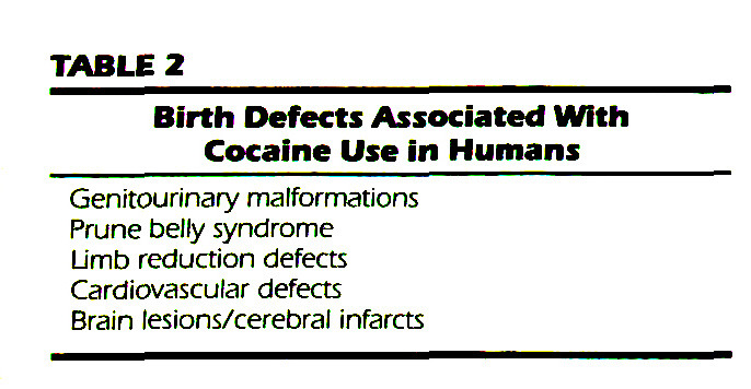 TABLE 2Birth Defects Associated With Cocaine Use in Humans