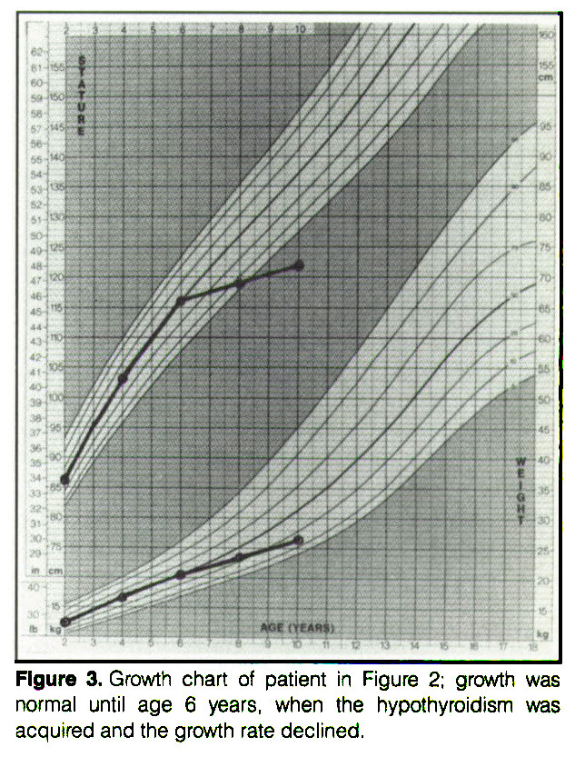 Figure 3. Growth chart of patient in Figure 2; growth was normal until age 6 years, when the hypothyroidism was acquired and the growth rate declined.