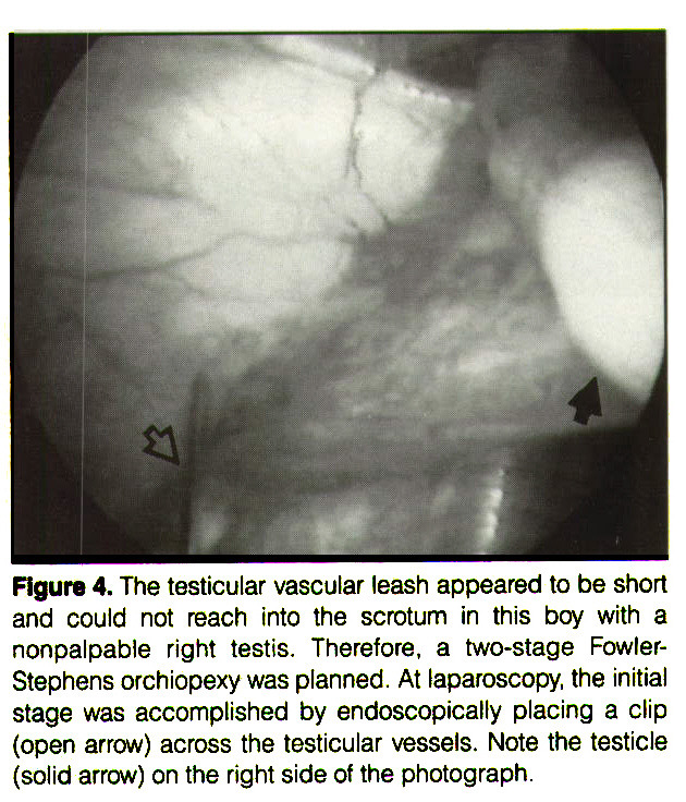 Figure 4. The testicular vascular leash appeared to be short and could not reach into the scrotum in this boy with a nonpalpable right testis. Therefore, a two-stage FowlerStephens orchiopexy was planned. At laparoscopy, the initial stage was accomplished by endoscopically placing a clip (open arrow) across the testicular vessels. Note the testicle (solid arrow) on the right side of the photograph.