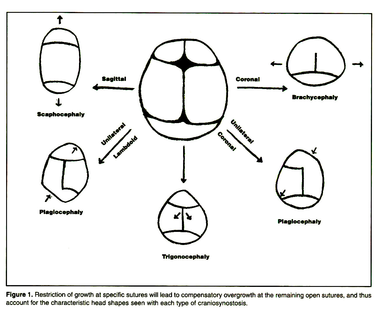 Figure 1. Restriction of growth at specific sutures will lead to compensatory overgrowth at the remaining open sutures, and thus account for the characteristic head shapes seen with each type of craniosynostosis.