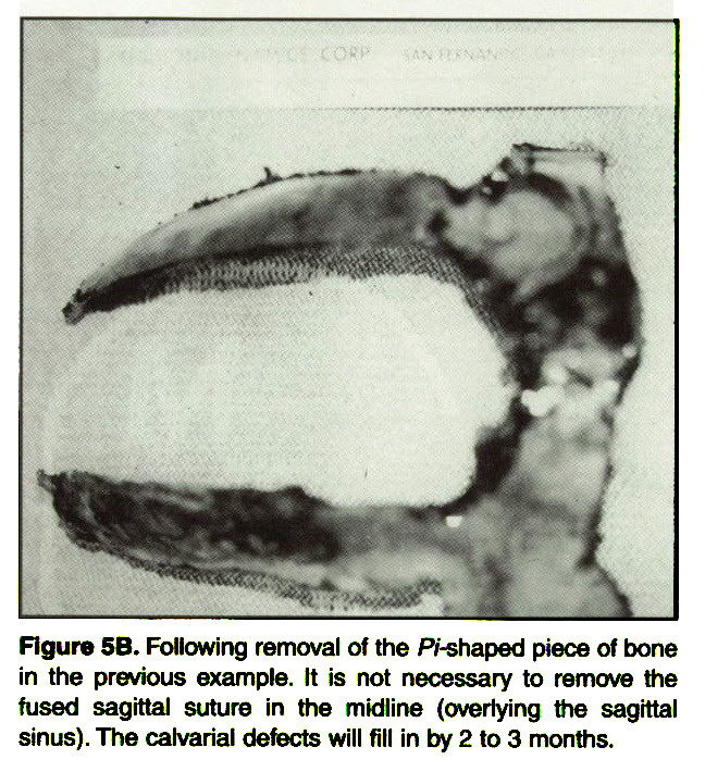 Figure 5B. Following removal of the Pi-shaped piece of bone in the previous example. It is not necessary to remove the fused sagittal suture in the midline (overlying the sagittal sinus). The calvarial defects will fill in by 2 to 3 months.