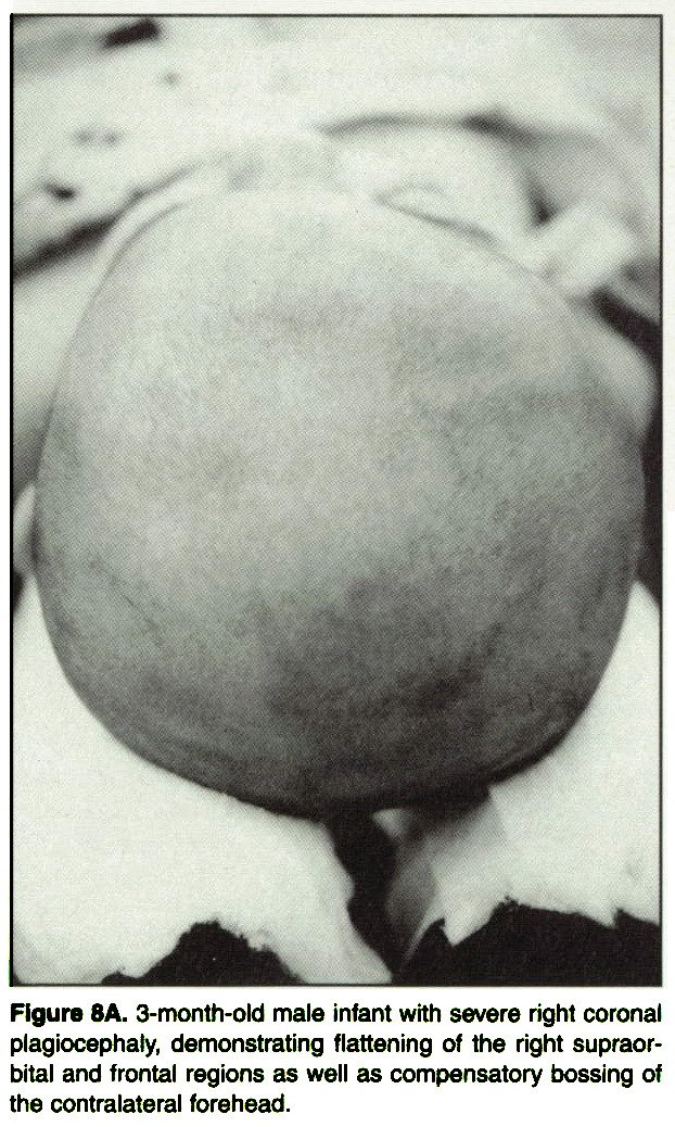 Figure 8A. 3-month-old male infant with severe right coronal plagiocephaly, demonstrating flattening of the right supraorbital and frontal regions as well as compensatory bossing of the contralateral forehead.