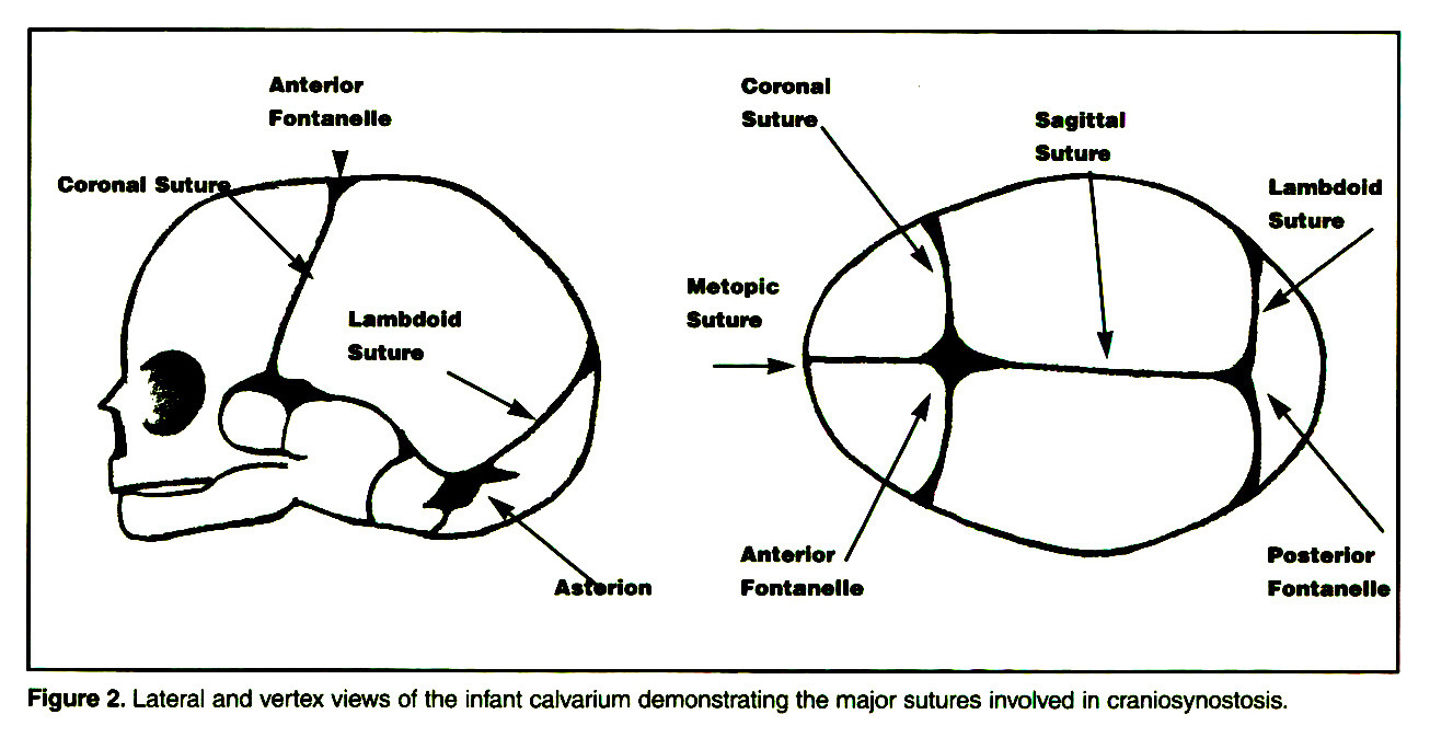 Figure 2. Lateral and vertex views of the infant calvarium demonstrating the major sutures involved in craniosynostosis.