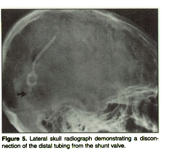 Figure 5. Lateral skull radiograph demonstrating a disconnection of the distal tubing from the shunt valve.