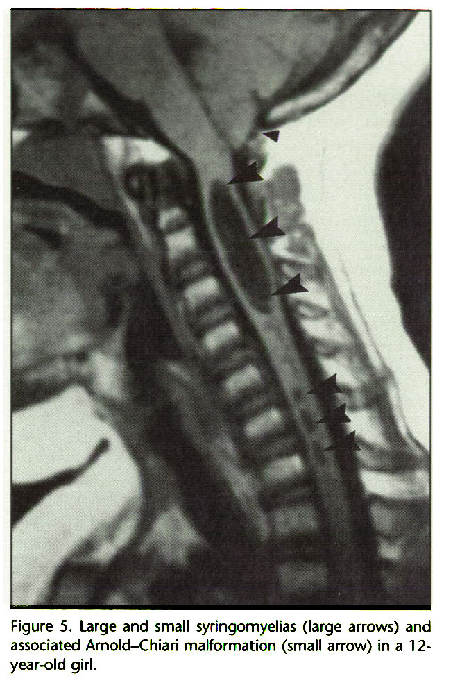 Figure 5. Large and small syringomyelias (large arrows) and associated Arnold-Chiari malformation (small arrow) in a 12year-old girl.