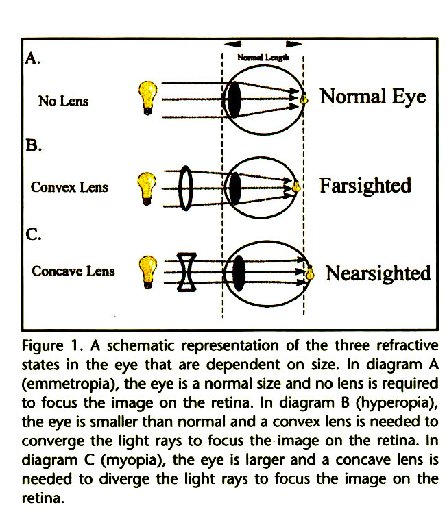 Figure 1 . A schematic representation of the three refractive states in the eye that are dependent on size. In diagram A (emmetropia), the eye is a normal size and no lens is required to focus the image on the retina. In diagram B (hyperopia), the eye is smaller than normal and a convex lens is needed to converge the light rays to focus the image on the retina. In diagram C (myopia), the eye is larger and a concave lens is needed to diverge the light rays to focus the image on the retina.
