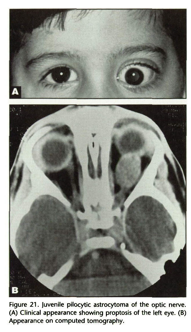 Figure 21 . Juvenile pilocytic astrocytoma of the optic nerve. (A) Clinical appearance showing proptosis of the left eye. (B) Appearance on computed tomography.