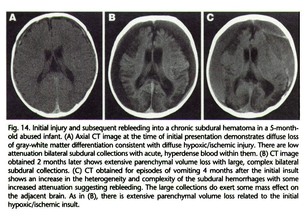 Fig. 14. Initial injury and subsequent rebleeding into a chronic subdural hematoma in a 5-monthokd abused infant. (A) Axial CT image at the time of initial presentation demonstrates diffuse loss of gray-white matter differentiation consistent with diffuse hypoxic/ischemic injury. There are low attenuation bilateral subdural collections with acute, hyperdense blood within them. (B) CT image obtained 2 months later shows extensive parenchymal volume loss with large, complex bilateral subdural collections. (C) CT obtained for episodes of vomiting 4 months after the initial insult shows an increase in the heterogeneity and complexity of the subdural hemorrhages with some increased attenuation suggesting rebleeding. The large collections do exert some mass effect on the adjacent brain. As in (B), there is extensive parenchymal volume loss related to the initial hypoxic/ischemic insult.