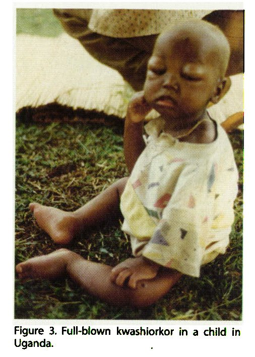 Figure 3. Full-blown kwashiorkor in a child in Uganda.