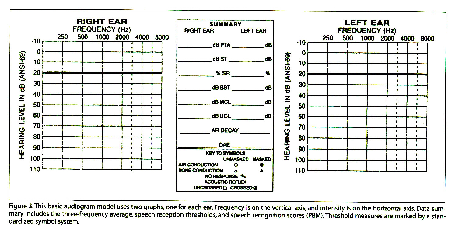 Figure 3.This basic audiogram model uses two graphs, one for each ear. Frequency is on the vertical axis, and intensity is on the horizontal axis. Data summary includes the three-frequency average, speech reception thresholds, and speech recognition scores (PBM). Threshold measures are marked by a standardized symbol system.