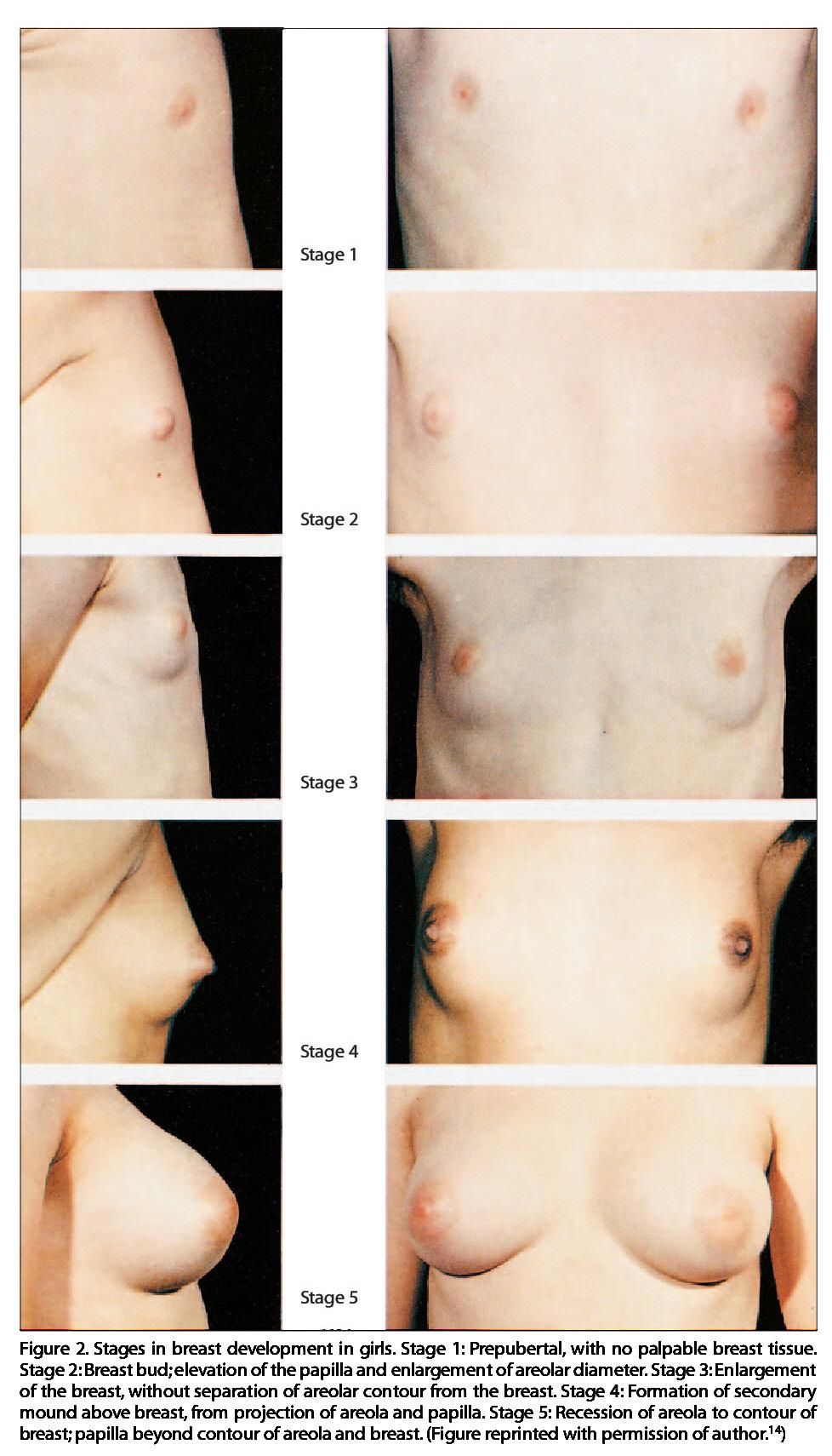 Breast enlargement in males