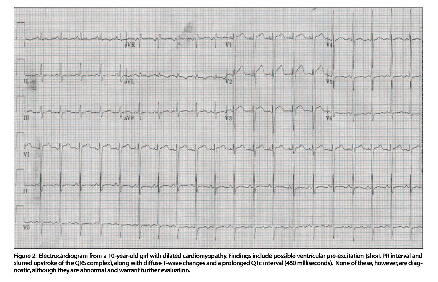 Figure 2. Electrocardiogram from a 10-year-old girl with dilated cardiomyopathy. Findings include possible ventricular pre-excitation (short PR interval and slurred upstroke of the QRS complex),along with diffuse T-wave changes and a prolonged QTc interval (460 milliseconds). None of these, however,are diagnostic, although they are abnormal and warrant further evaluation.