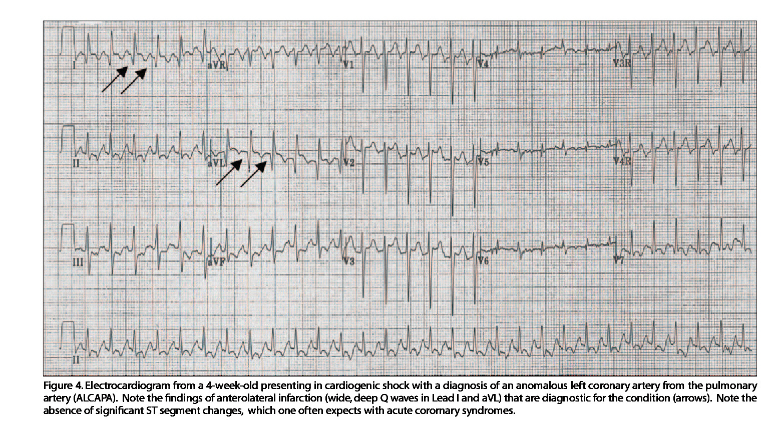 Figure 4. Electrocardiogram from a 4-week-old presenting in cardiogenic shock with a diagnosis of an anomalous left coronary artery from the pulmonary artery (ALCAPA). Note the findings of anterolateral infarction (wide, deep Q waves in Lead I and aVL) that are diagnostic for the condition (arrows). Note the absence of significant ST segment changes, which one often expects with acute coromary syndromes.