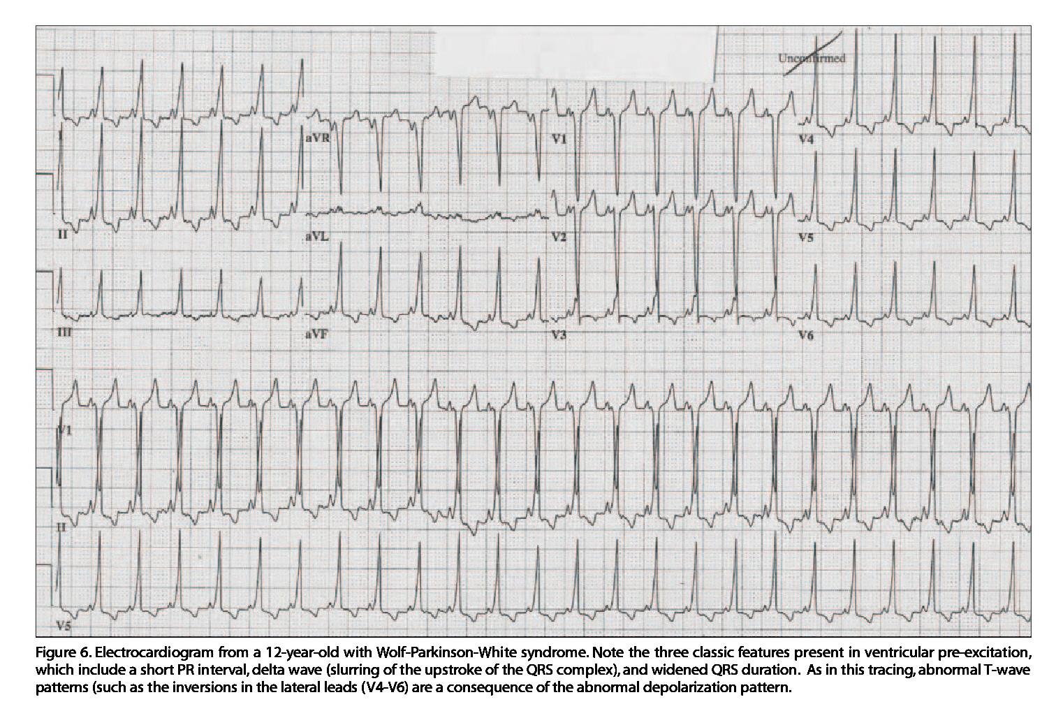 Figure 6. Electrocardiogram from a 12-year-old with Wolf-Parkinson-White syndrome. Note the three classic features present in ventricular pre-excitation, which include a short PR interval, delta wave (slurring of the upstroke of the QRS complex),and widened QRS duration. As in this tracing, abnormal T-wave patterns (such as the inversions in the lateral leads (V4-V6) are a consequence of the abnormal depolarization pattern.