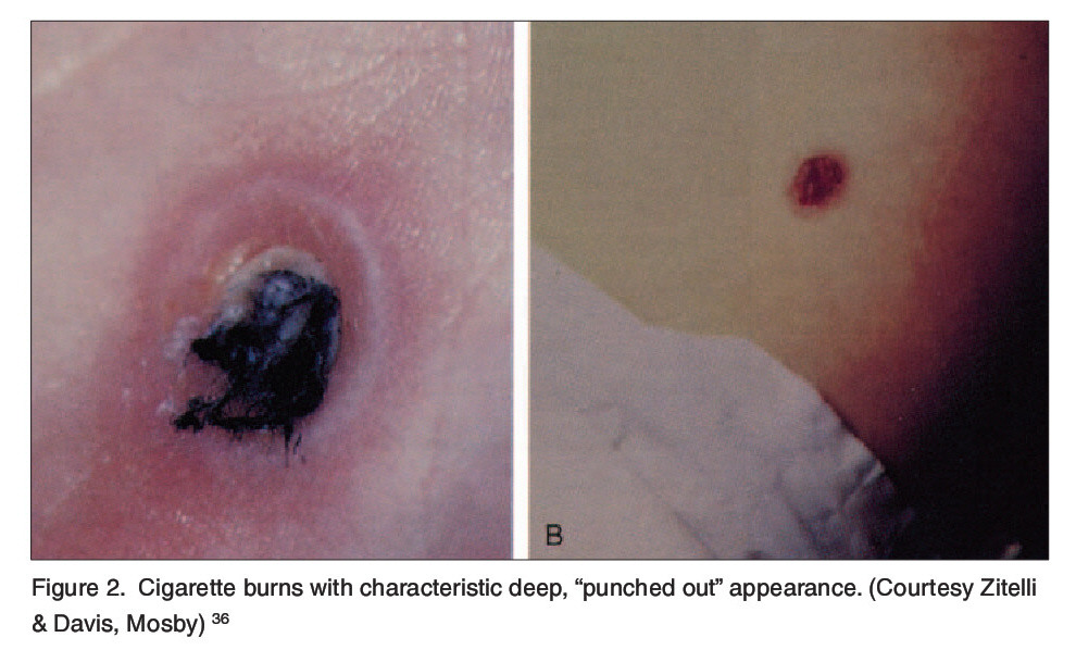 """Figure 2. Cigarette burns with characteristic deep, """"punched out"""" appearance. (Courtesy Zitelli & Davis, Mosby)36"""