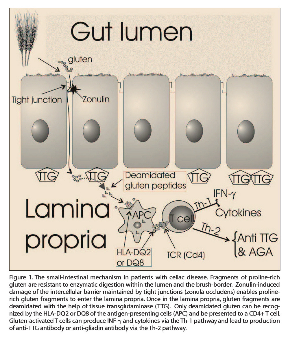 Figure !.The small-intestinal mechanism in patients with celiac disease. Fragments of proline-rich gluten are resistant to enzymatic digestion within the lumen and the brush-border. Zonulin-induced damage of the intercellular barrier maintained by tight junctions (zonula occludens) enables prolinerich gluten fragments to enter the lamina propria. Once in the lamina propria, gluten fragments are deamidated with the help of tissue transglutaminase (TTG). Only deamidated gluten can be recognized by the HLA-DQ2 or DQ8 of the antigen-presenting cells (APC) and be presented to a CD4+ T cell. Gluten-activated T cells can produce INF-? and cytokines via theTh-1 pathway and lead to production of anti-TTG antibody or anti-gliadin antibody via theTh-2 pathway.