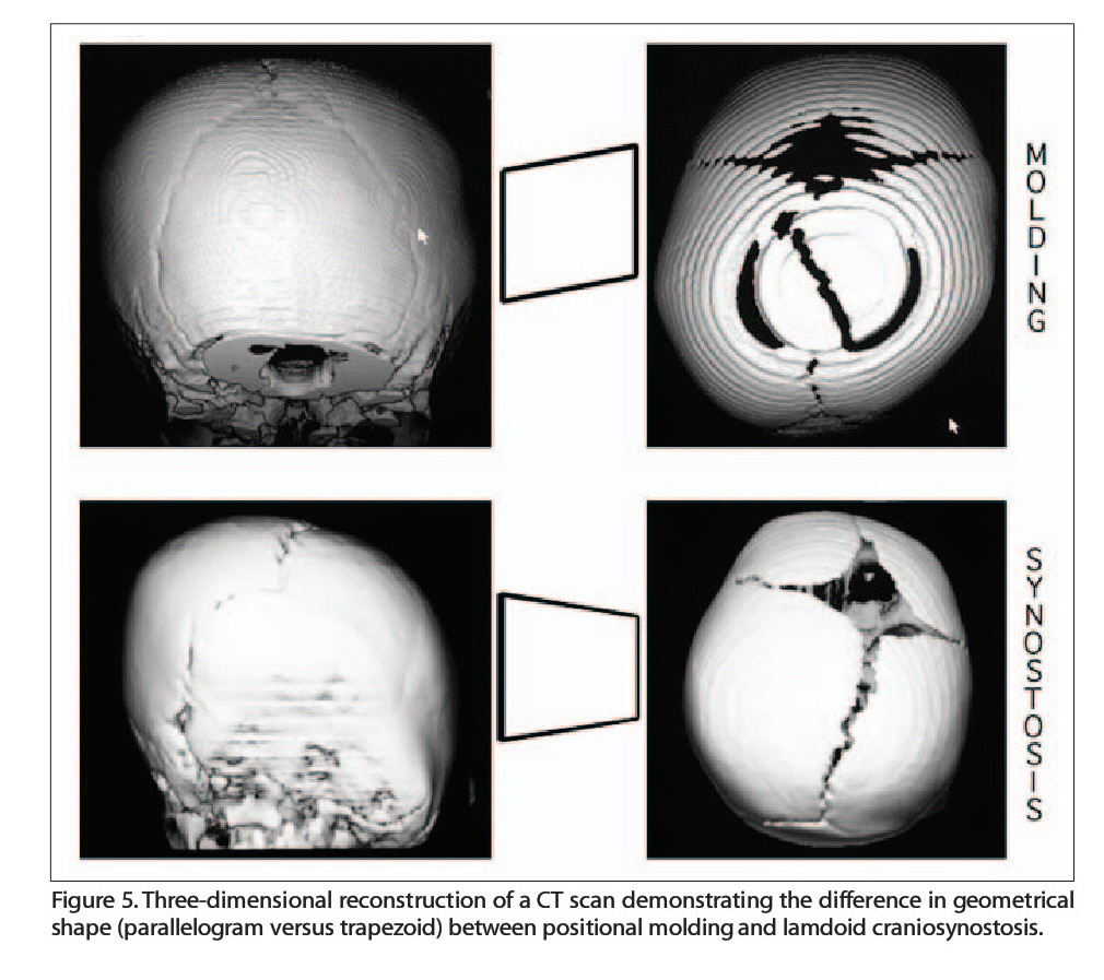Figure 5. Three-dimensional reconstruction of a CT scan demonstrating the difference in geometrical shape (parallelogram versus trapezoid) between positional molding and lamdoid craniosynostosis.