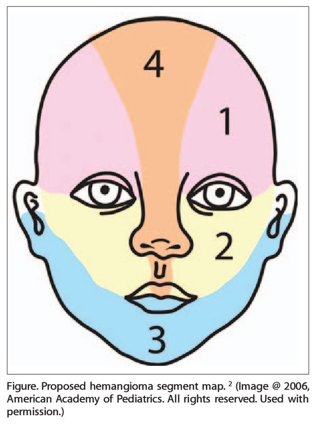 Figure. Proposed hemangioma segment map. 2 (Image @ 2006, American Academy of Pediatrics. All rights reserved. Used with permission.)