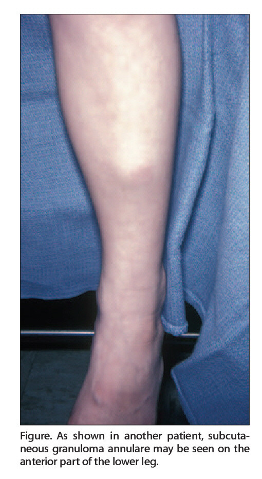 Figure. As shown in another patient, subcutaneous granuloma annulare may be seen on the anterior part of the lower leg.