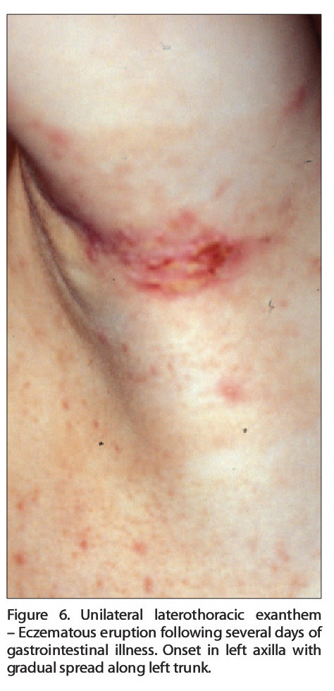 Figure 6. Unilateral laterothoracic exanthem - Eczematous eruption following several days of gastrointestinal illness. Onset in left axilla with gradual spread along left trunk