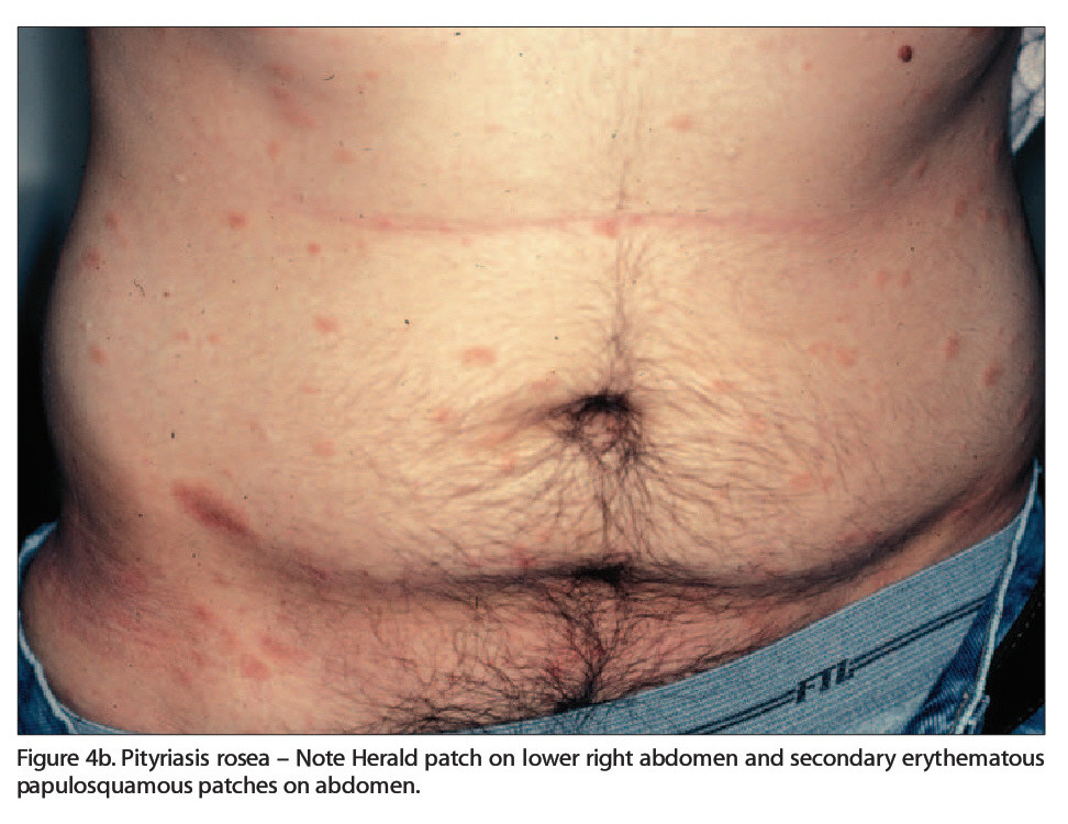 Figure 4b. Pityriasis rosea - Note Herald patch on lower right abdomen and secondary erythematous papulosquamous patches on abdomen.
