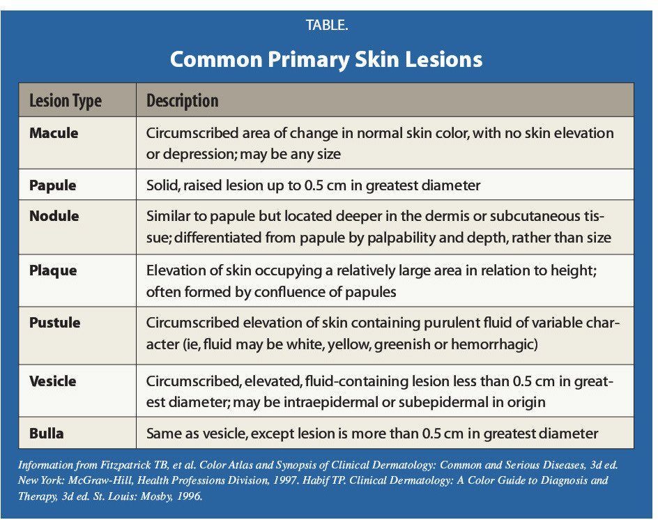 TABLE.Common Primary Skin Lesions